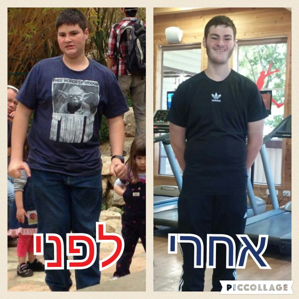 shalev-before-after